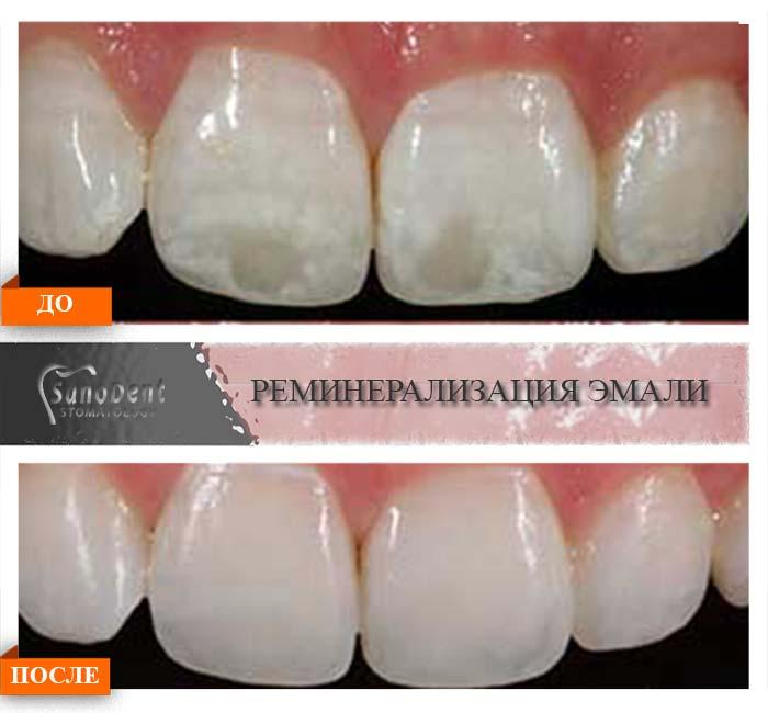 Гель для реминерализации зубов