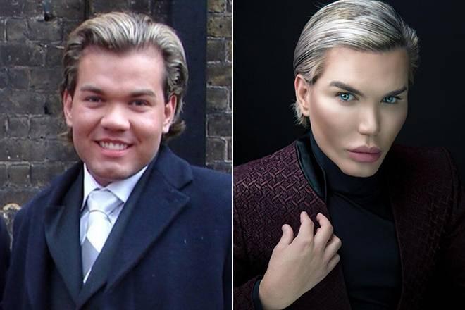 Родриго алвес до и после