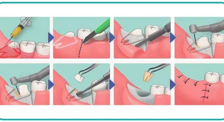 Показания и противопоказания к удалению зуба
