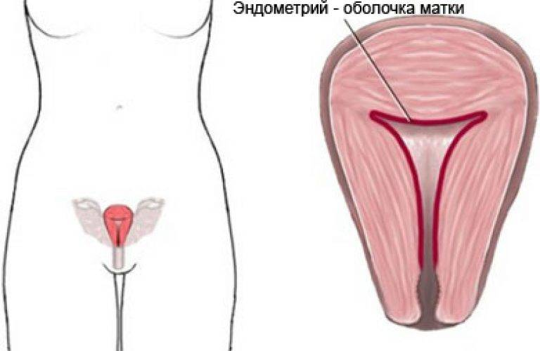 Причины и лечение тонкого эндометрия