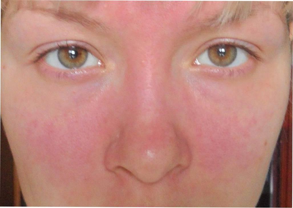 Ринофима носа: причины, симптомы, диагностика и особенности лечения