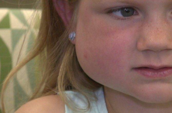 Опухла щека: причины отека щеки, как снять опухоль, раздуло щеку без зубной боли