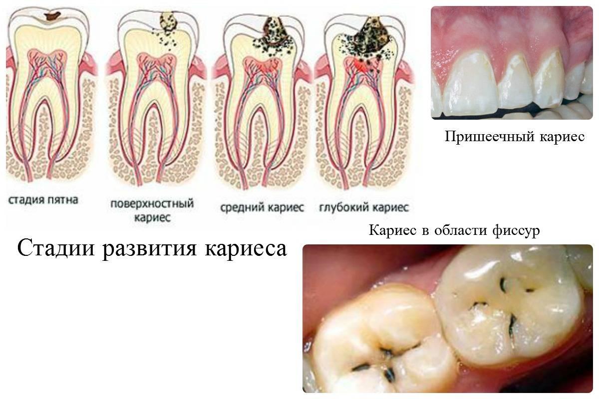 Что характерно для кариеса на передних зубах и в чем его особенность?
