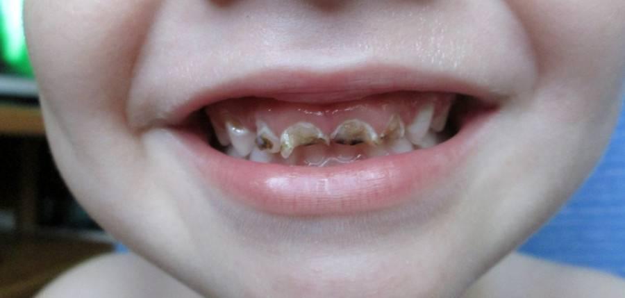 Все о том, почему крошатся зубы