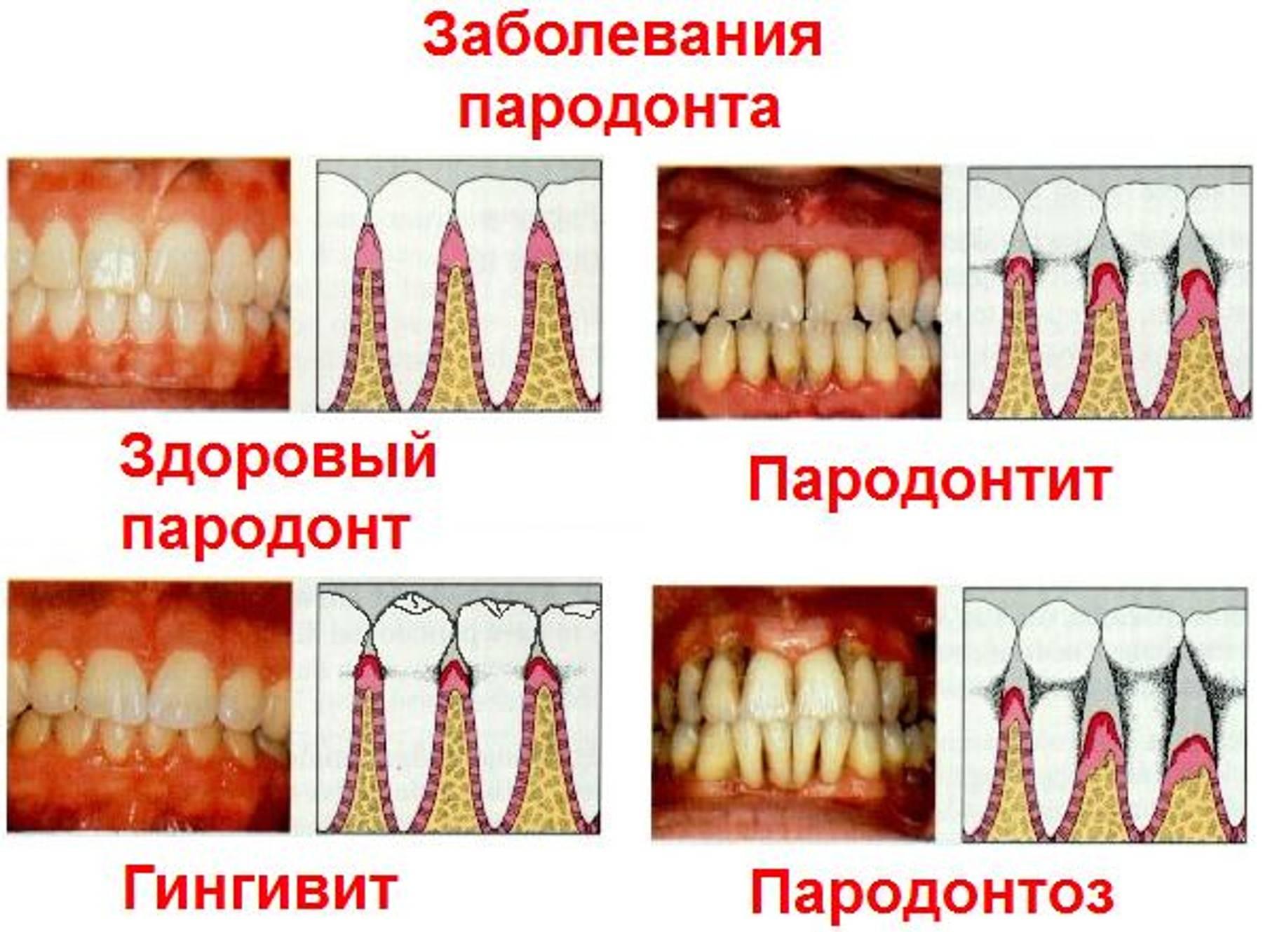 Сверхкомплектные зубы, или что такое гипердонтия, причины, симптомы, методы лечения