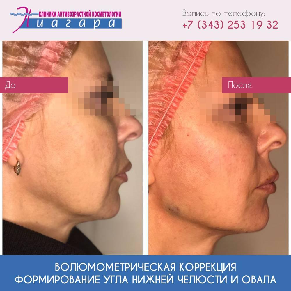 Мандибулопластика. пластика нижней челюсти для создания привлекательного лица