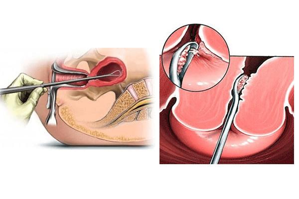 Как подготовиться к удалению полипа в матке методом гистероскопии и восстановление после гистерорезектоскопии цервикального канала