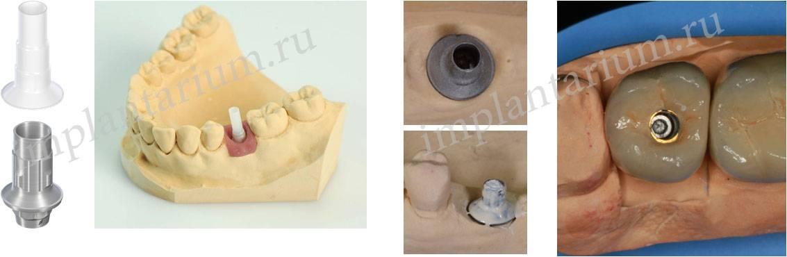 Какие лучше ставить коронки на импланты — циркониевые или металлокерамические: способы их фиксации с фото