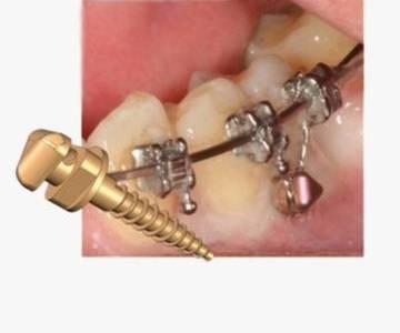 Комплексная реставрация зубов с настройкой прикуса