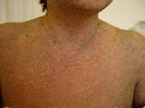 Все о пузырчатом дерматите