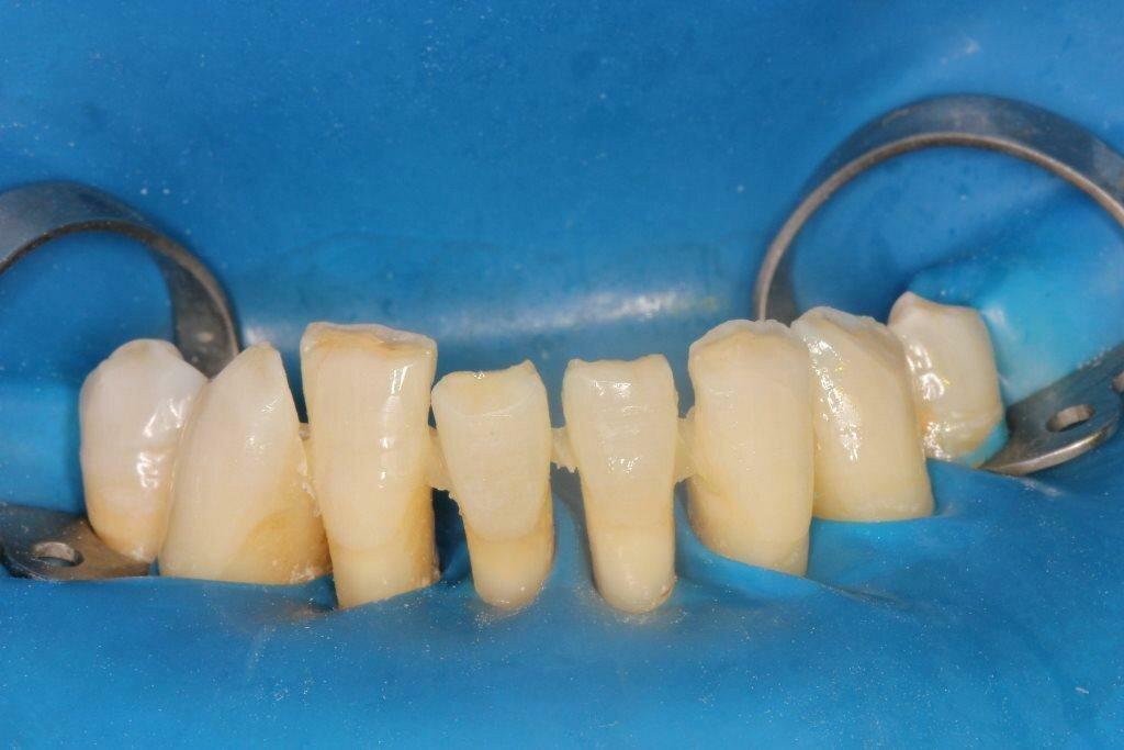 Шинирование подвижных зубов при пародонтите