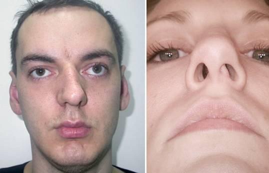 У меня искривлена носовая перегородка. нужна операция?