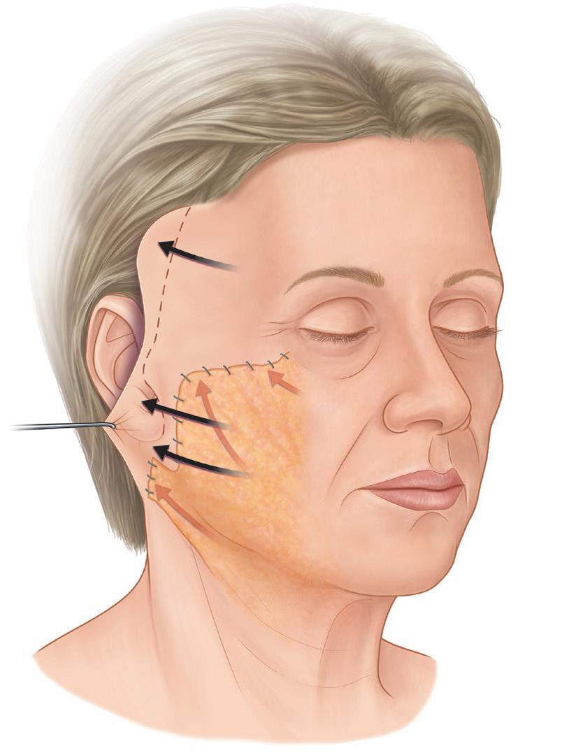 Подтяжка нижней трети лица и шеи
