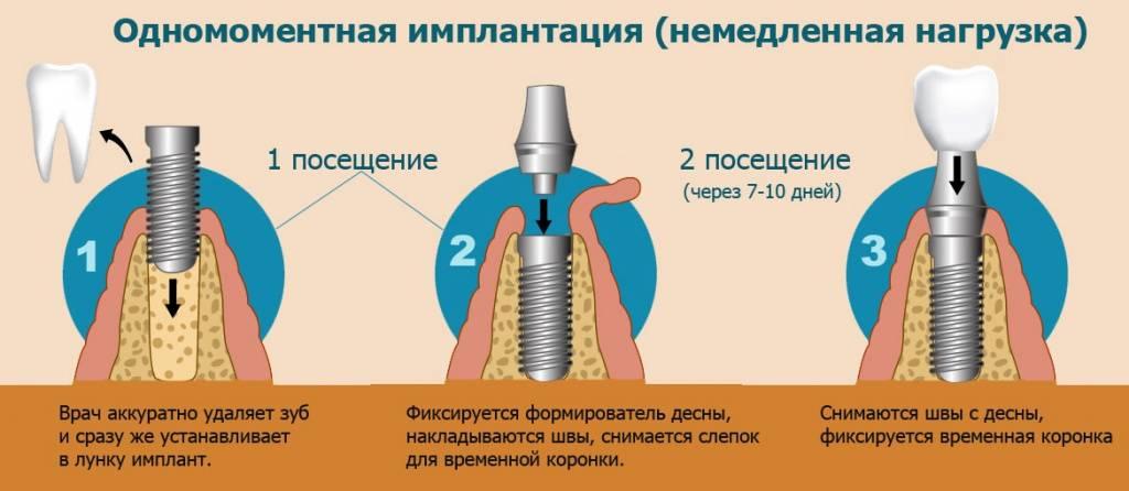 Описание этапов имплантации зубов