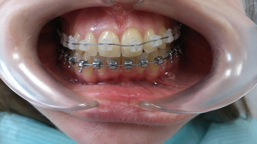 Вот почему брекеты на верхнюю челюсть — отличный способ получить правильный прикус!