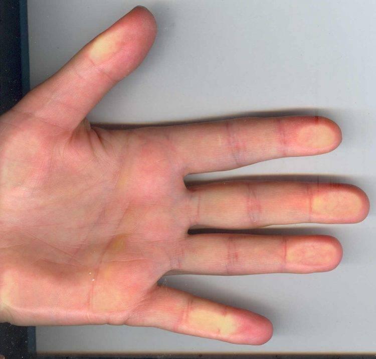 Лечим сухие мозоли на руках: клинический и народный подходы