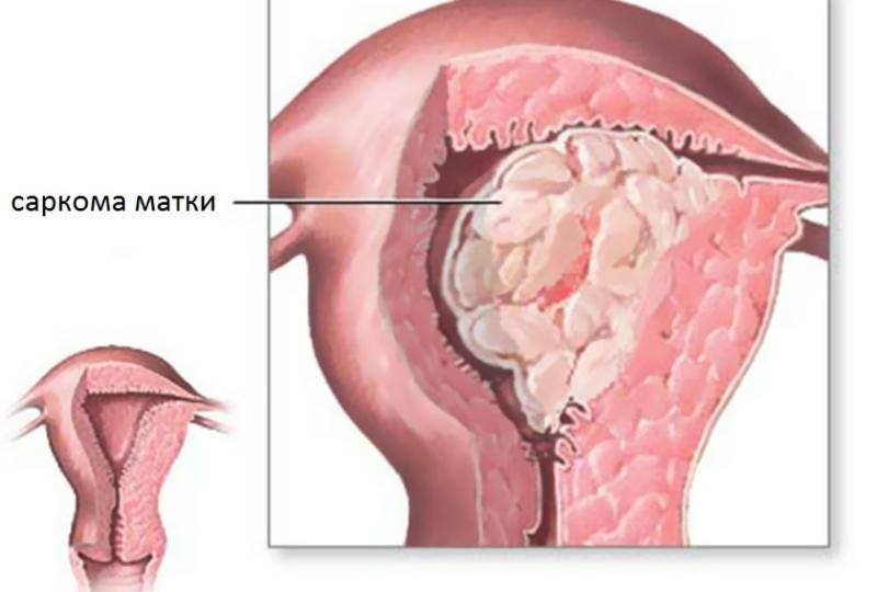 Саркома матки: симптомы, лечение и прогноз жизни