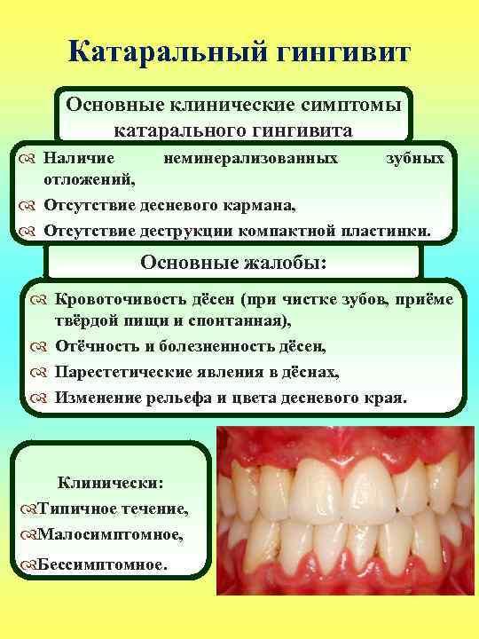Как и чем быстро укрепить рыхлые и слабые десны в домашних условиях, чтобы не шатались зубы