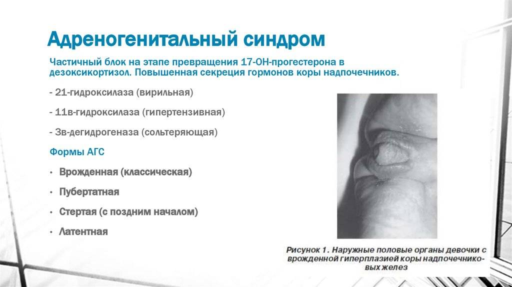 Гипоменорея