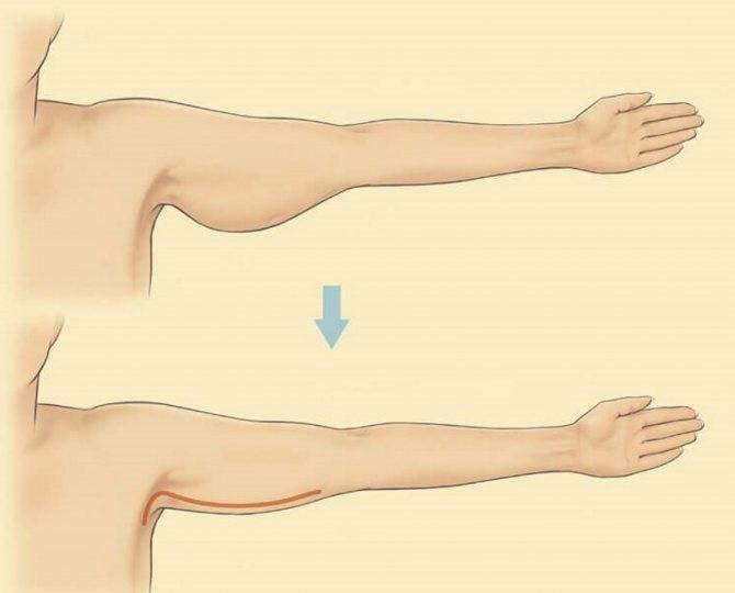 Как бороться с обвисшей кожей и привести тело в порядок
