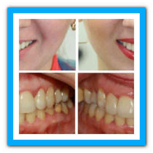 Как можно выровнять зубы и сделать улыбку идеальной без использования брекетов?