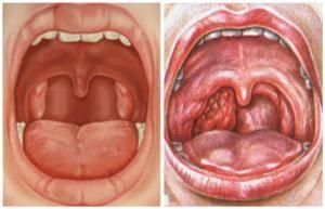 Рак миндалин симптомы