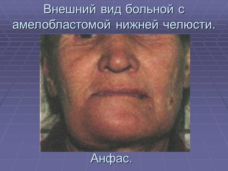 Амелобластома (адамантинома) нижней челюсти: симптомы с фото, лечение, прогноз