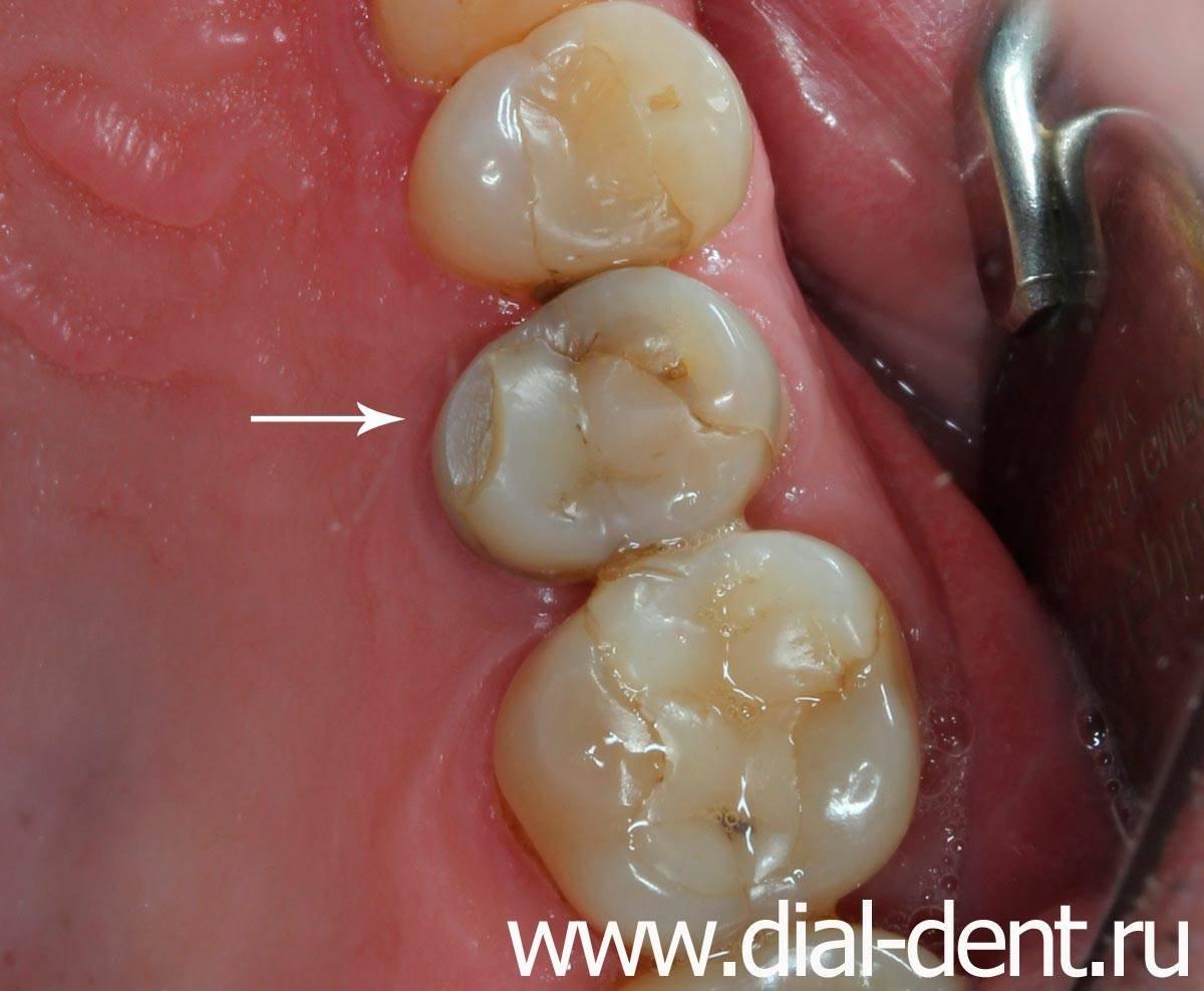 Народные приметы о выпавших зубах взрослых и детей – значение, объяснения