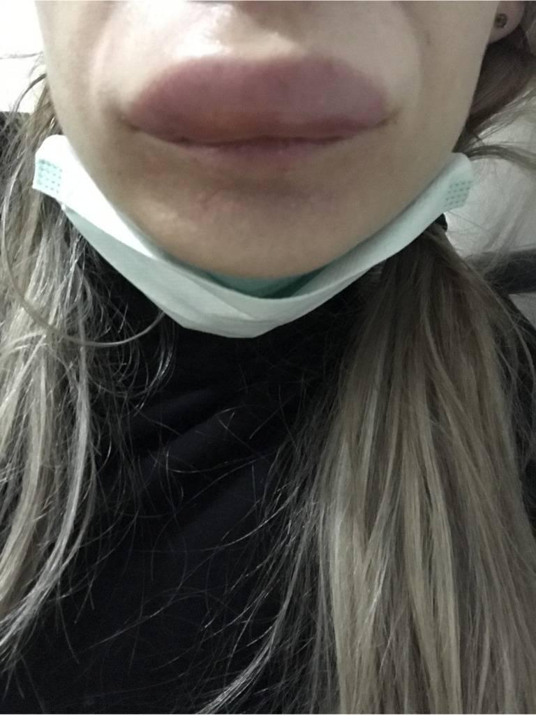 Опухла губа: причины, лечение отека нижней и верхней губы