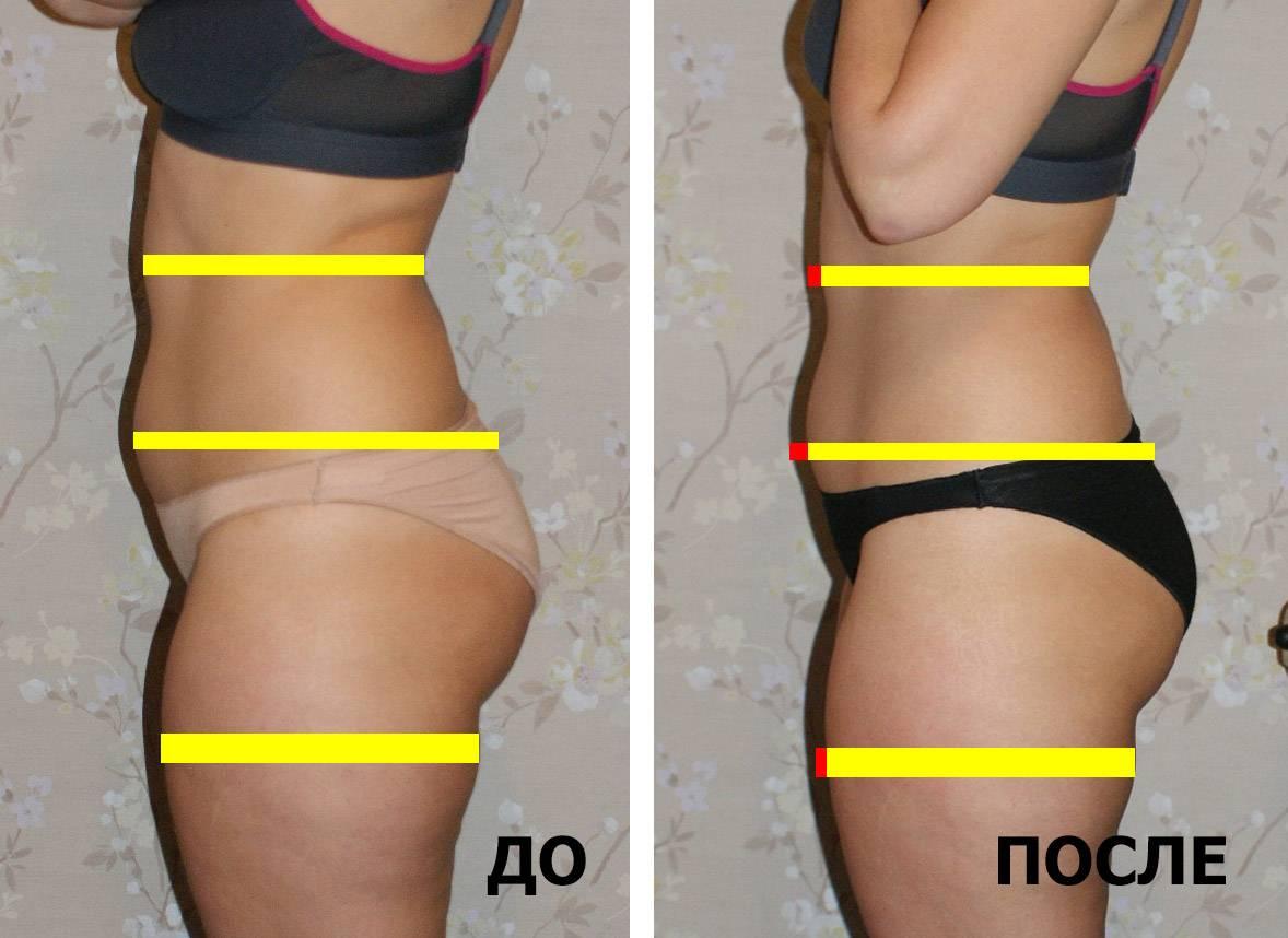 Топ 7 самых эффективных упражнений для похудения ног и бедер дома