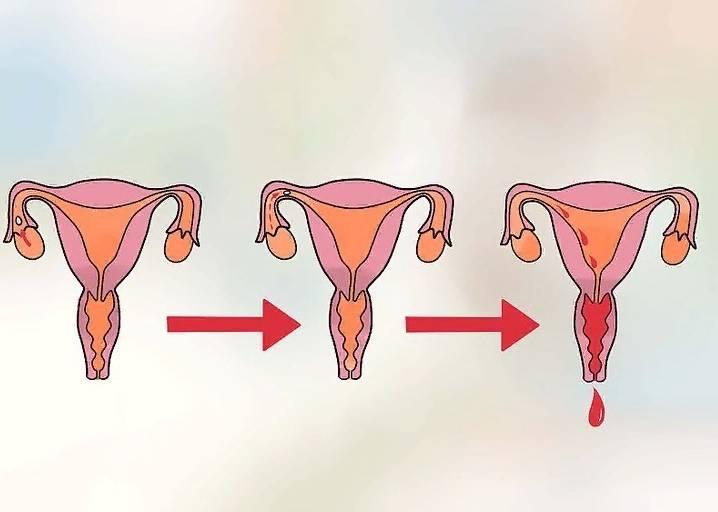 Частые месячные у женщин после 40 лет и подростков: возможные причины и методы лечения