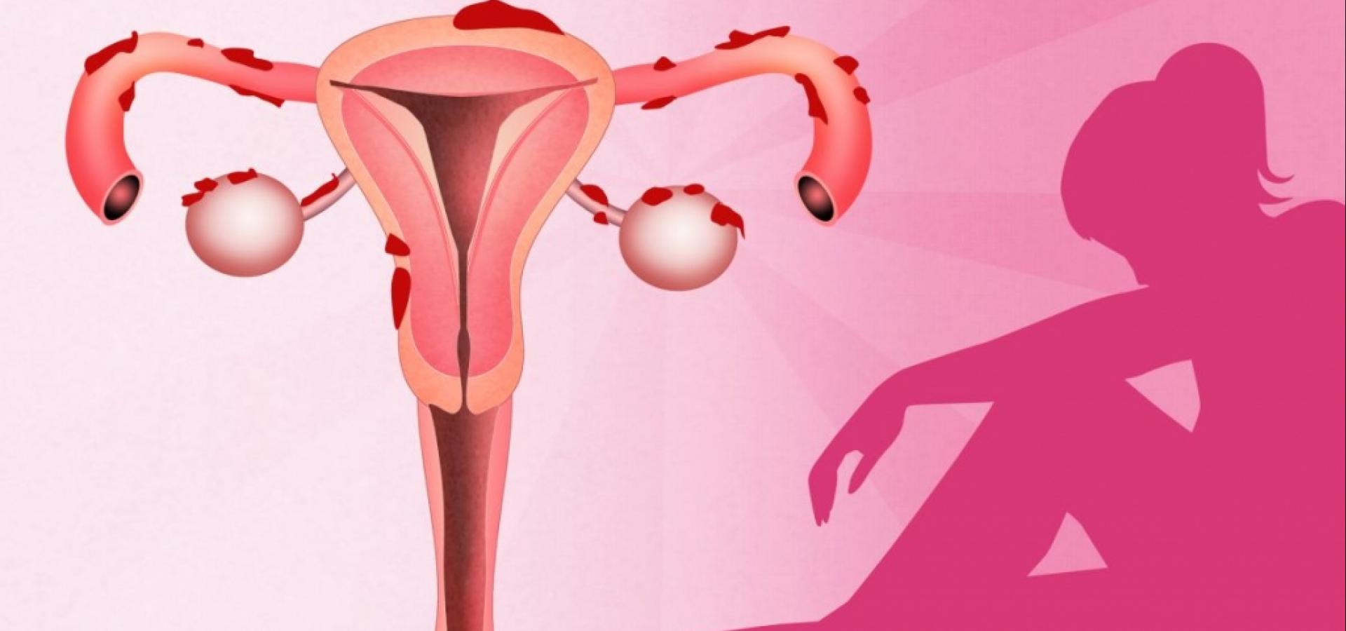 Как болит эндометриоз: характер симптомов, причины появление болей