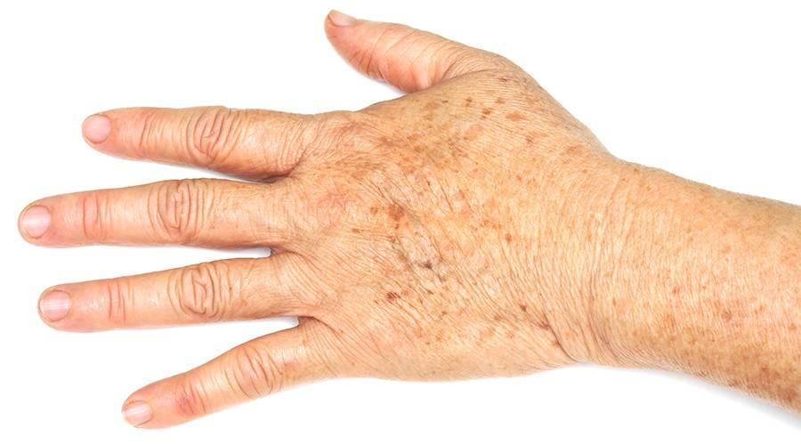 Кератоз кожи - причины, удаление и лечение народными средствами в домашних условиях