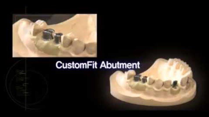 Обзор зубных имплантов osstem (осстем)