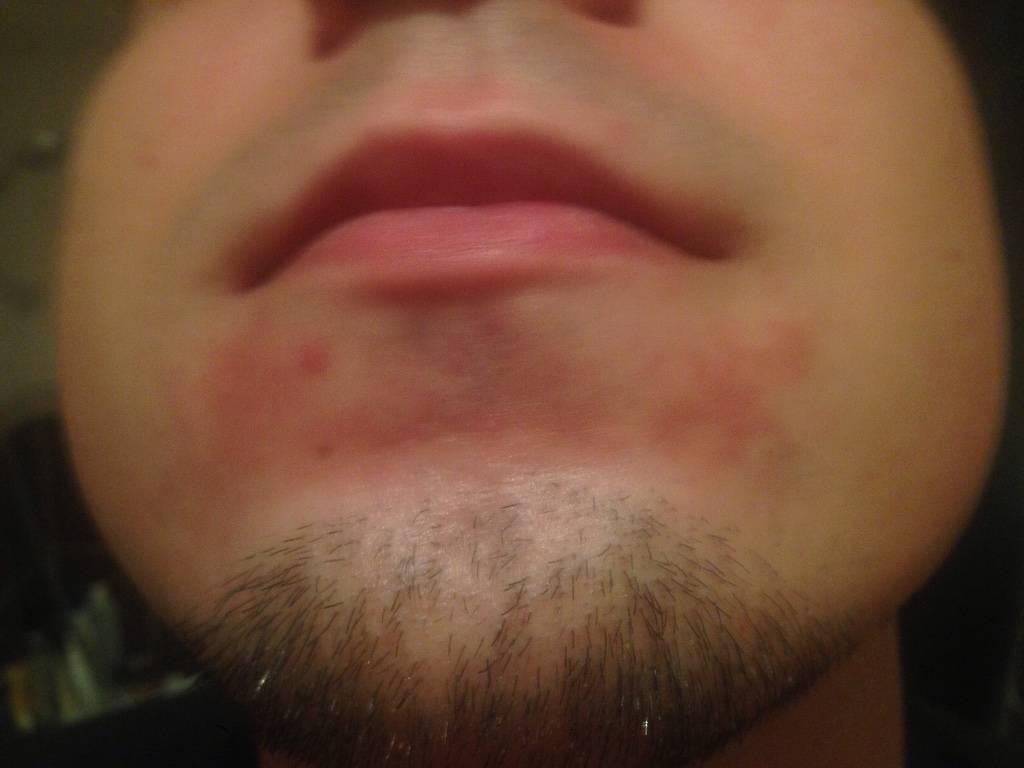 Почему кожа на лице сухая и шелушится