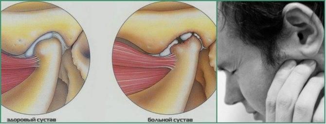 Артрит челюстно-лицевого сустава (внчс)