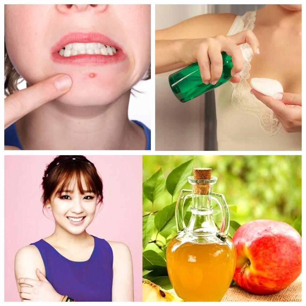 Яблочный уксус для лица: состав, способы применения и польза по уходу за кожей
