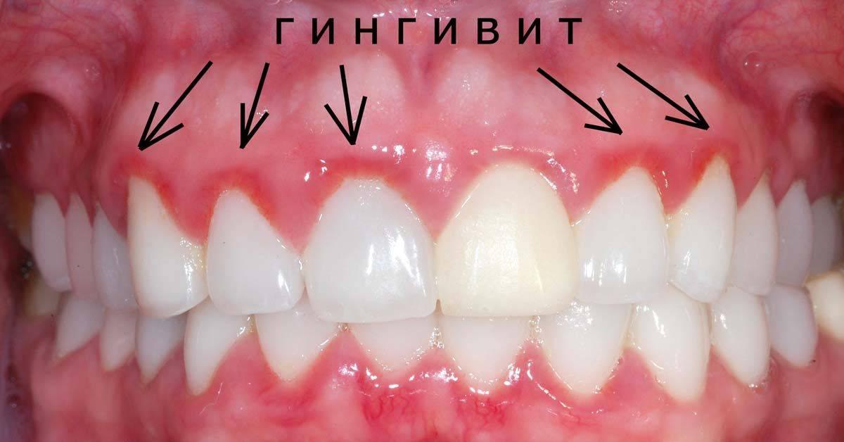 Болит небо после удаления зуба. воспаление неба: причины и методы лечения