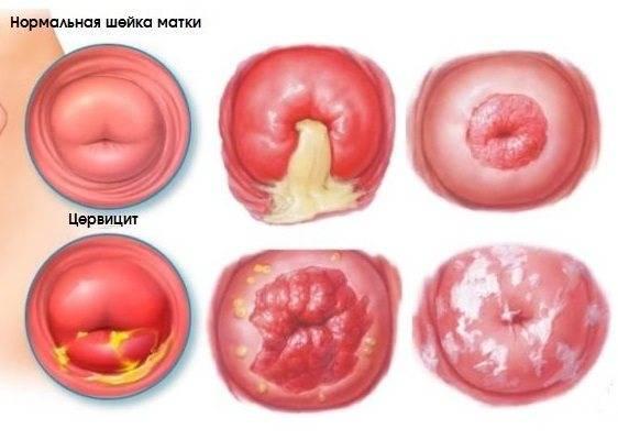 Что такое эндоцервицит шейки матки