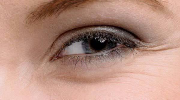 Как избавиться от морщин вокруг глаз: способы для домашнего использования