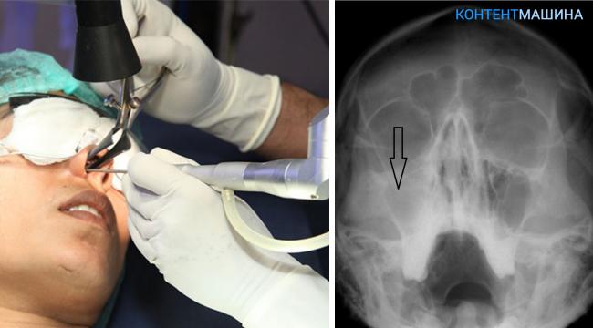 Суть операции гайморотомии