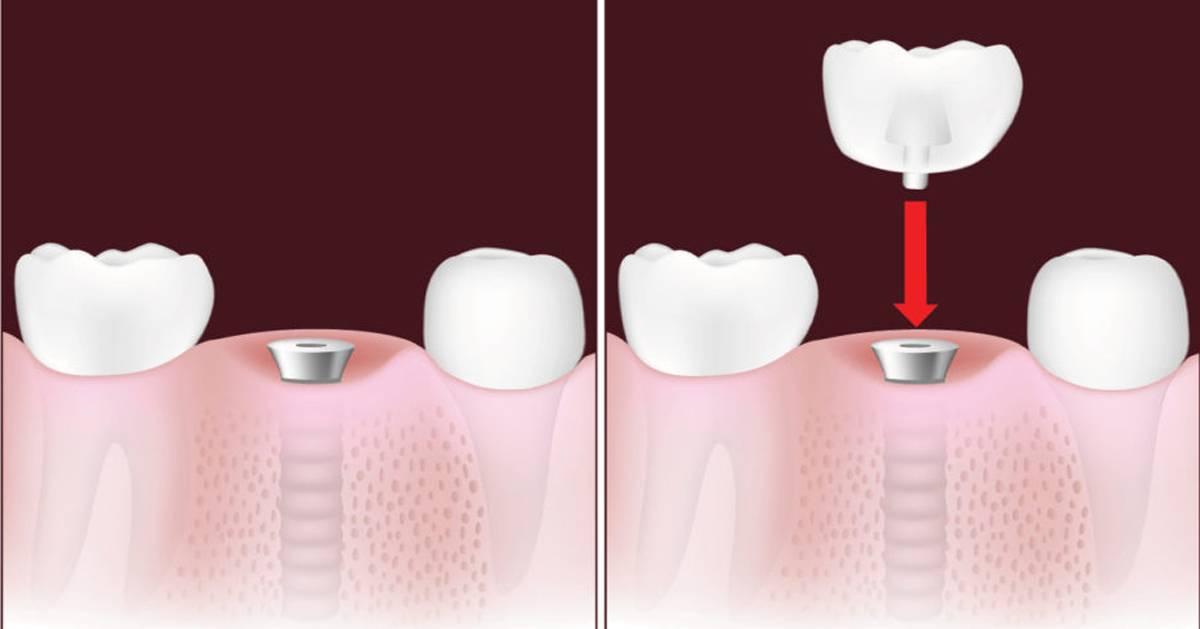Установка зубного импланта