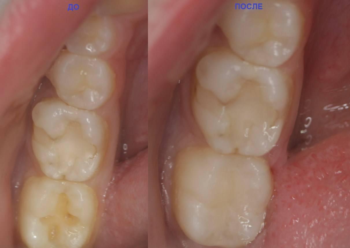 Потемнение вокруг пломбы. почему потемнел зуб? интересное видео: препарирование и реставрация зуба при глубоком кариесе