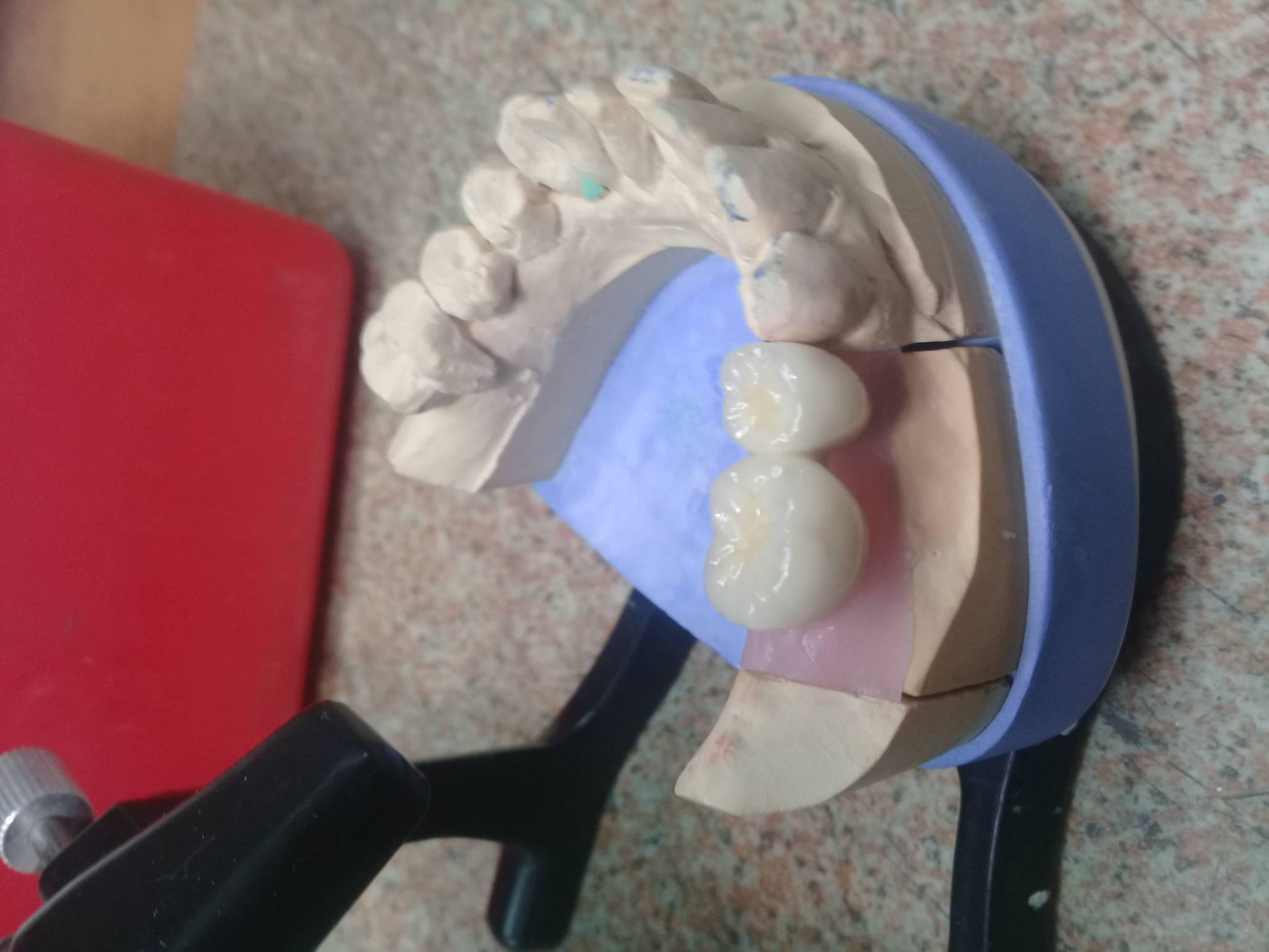 На какой клей сажают зубные коронки. чем можно приклеить коронку к зубу в домашних условиях