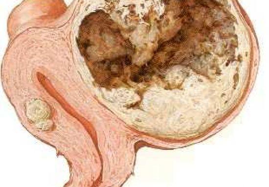 Что такое саркома матки и как ее лечат