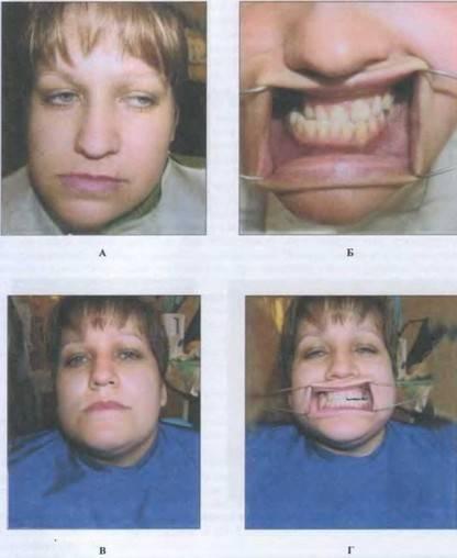 Что делать опухла нижняя челюсть
