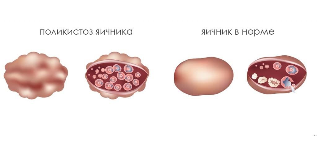 Верошпирон киста яичника