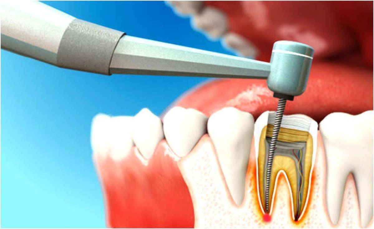 Почему болит зуб после чистки каналов и что с этим делать