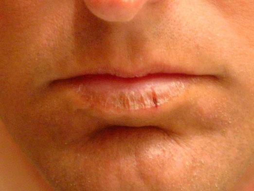 Трескаются губы: причины. каких витаминов не хватает, если трескаются губы? что делать, если трескаются губы при беременности?