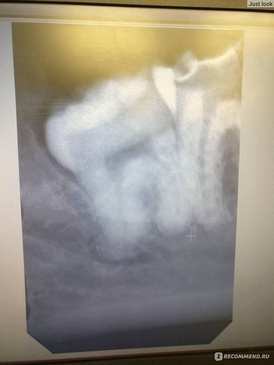 Осложнения местной анестезии после удаления зуба мудрости: онемели язык и губы, нет чувствительности